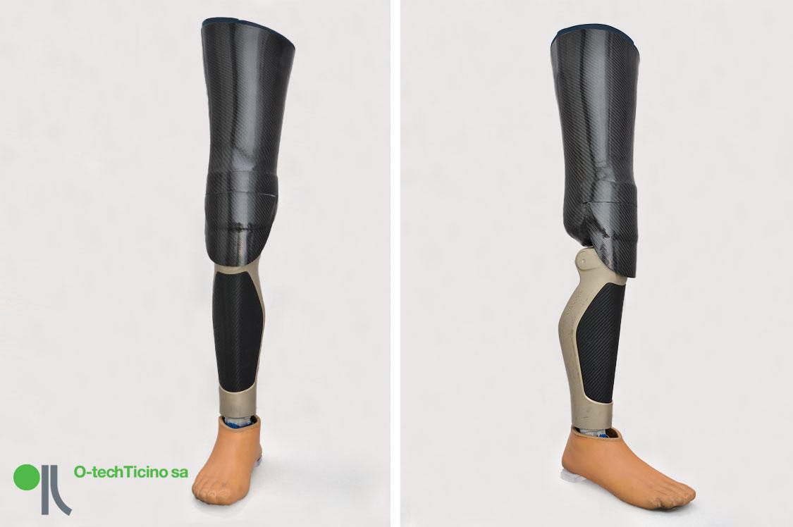 protesi01